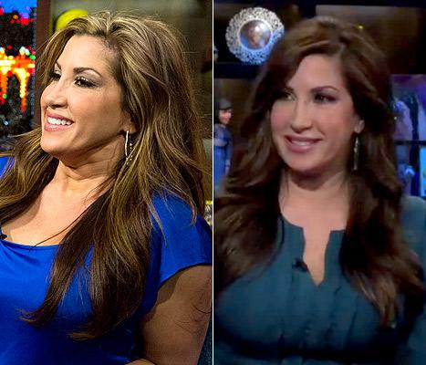 Jacqueline Laurita Had a Tummy Tuck and Neck Lift