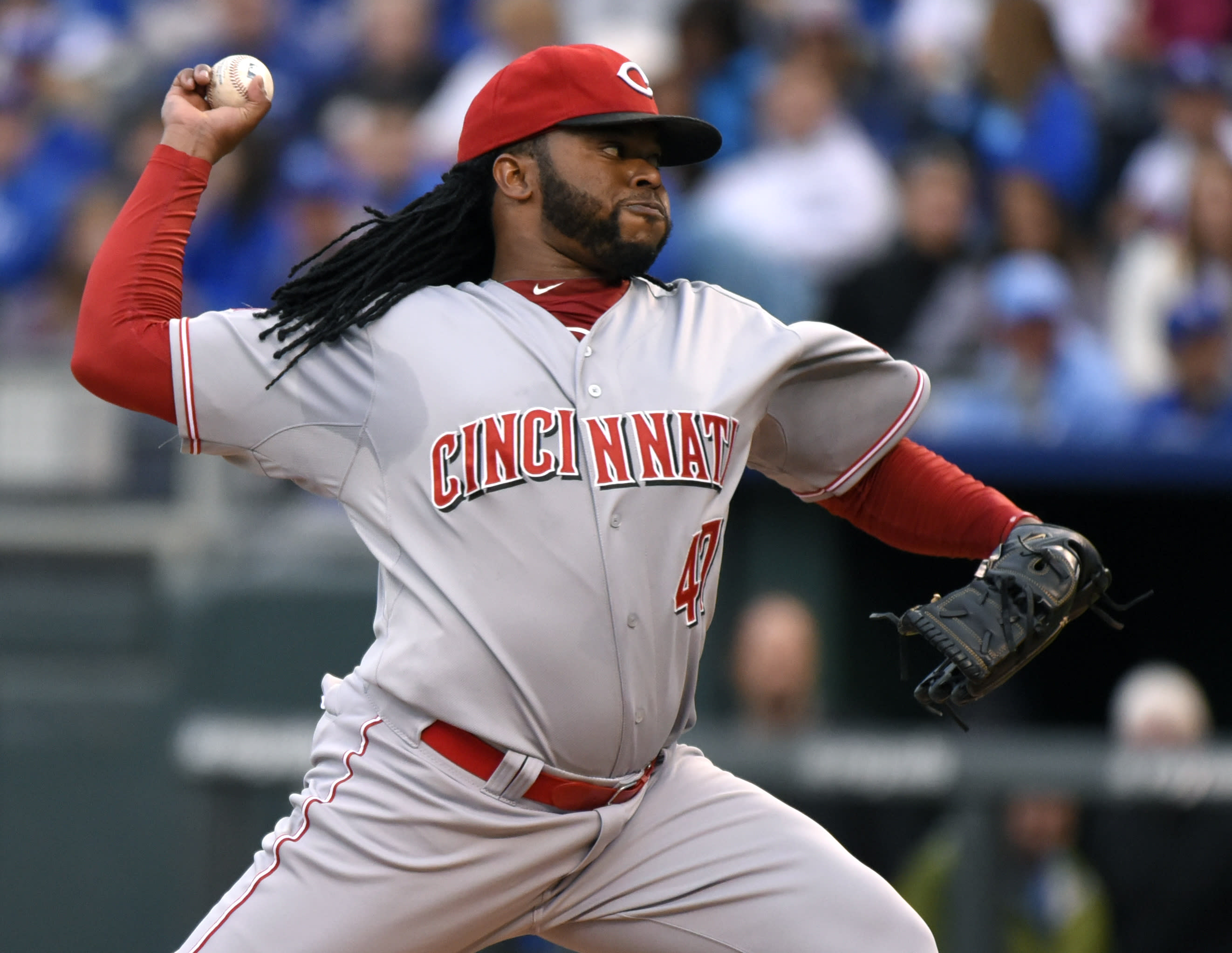 MRI finds inflammation in Cueto's elbow but no major problem