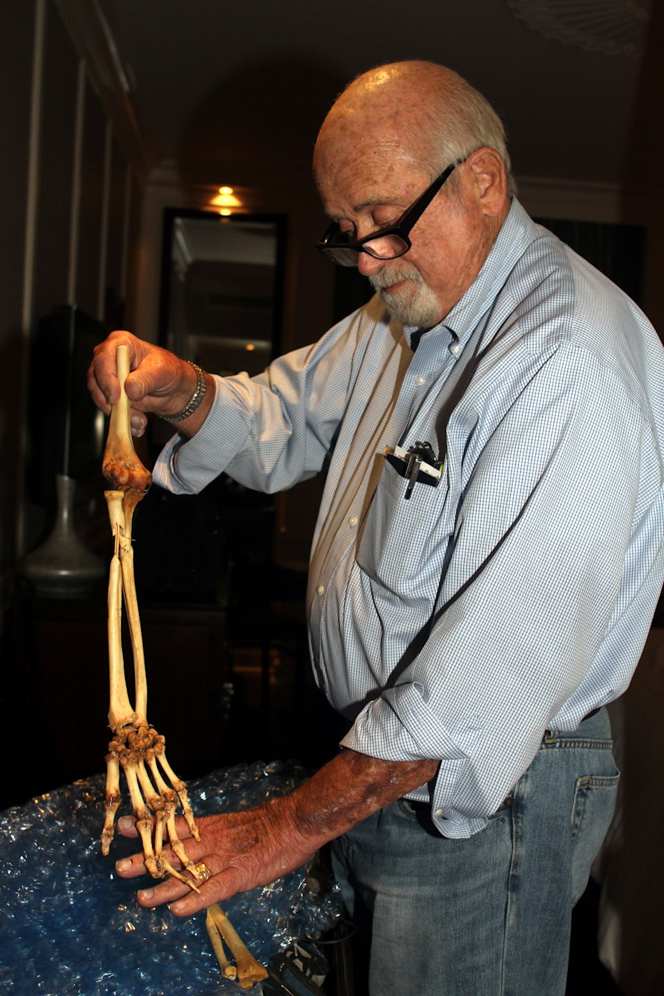 In this photo taken Sunday, June 30, 2013, Dr. Sam Axelrad displays in a hotel room in Hanoi the bones of an arm he amputated in 1966 in the former South Vietnam. On Monday the Houston urologist was traveling to meet the amputee, Nguyen Quang Hung. Axelrad, 74, amputated Hung's infected arm in October 1966 in a U.S. military hospital after Hung was shot by American troops near Hung's hometown of An Khe. The two veterans were reunited after a Vietnamese journalist wrote an article last year about Axelrad's search for Hung, prompting Hung's brother to contact the newspaper. (AP photo/Mike Ives)