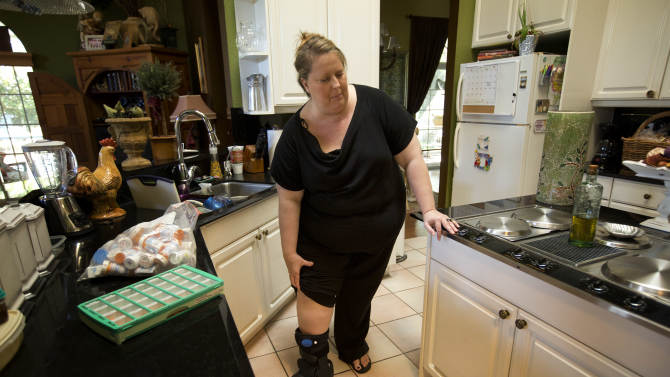 In this Monday, Oct 22, 2012 photo, Julie Susi stops to check her leg, the one with a broken bone, in her Davie, Fla. home as she talks about her father and the upcoming auction. Susi suffers from a rare autoimmune disease that makes her bones dangerously brittle and causes her body's defenses to attack her own blood vessels. Her father, Ken Kallin, hopes to sell off his entire 120,000-piece memorabilia collection that includes photographs signed by Muhammad Ali and Neil Armstrong at an auction to benefit Julie.  (AP Photo/J Pat Carter)
