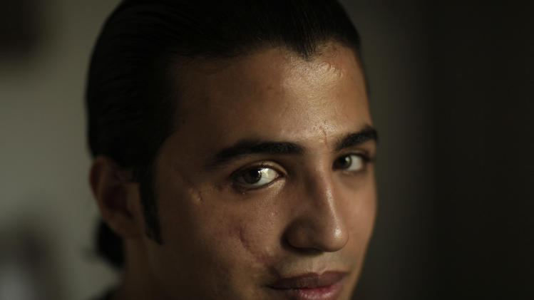 In this Tuesday, Aug. 28, 2012 photo, Mohammad B., a refugee from Daraa, Syria, poses for a portrait in Cairo, Egypt. He fled Syria for his life in May 2011 after he was shot in the face and badly wounded in his hometown of Daraa, the birthplace of the uprising against Bashar Assad's rule. (AP Photo/Maya Alleruzzo)
