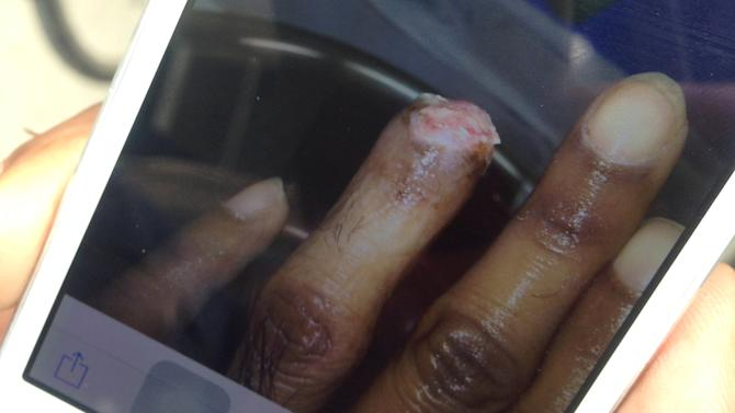 Kallai, a 28-year-old Indian worker at Ikeda Manufacturing, shows a photo of a workplace injury to his finger caused by a conveyor belt chain in Ota, Japan