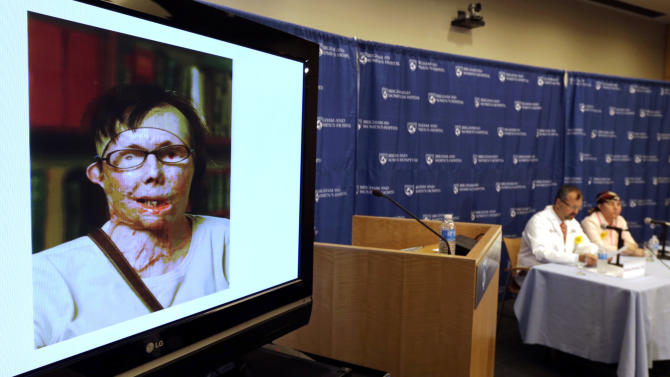 A file photograph of Carmen Blandin Tarleton, of Thetford, Vermont, is displayed during a news conference at Brigham and Women's Hospital in Boston,  Wednesday, May 1, 2013. The 44-year-old mother of two underwent the transplant in February after a 2007 attack in which her estranged husband doused her with industrial strength lye, burning more than 80 percent of her body. (AP Photo/Charles Krupa)