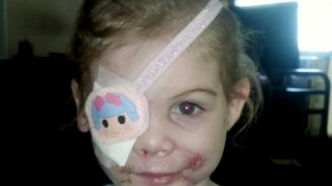 Little girl kicked out of KFC over scars was a hoax, investigators claim