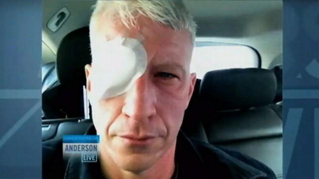 Anderson Cooper Temporarily Blinded