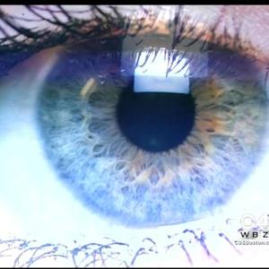 New Procedure Changes Brown Eyes To Blue