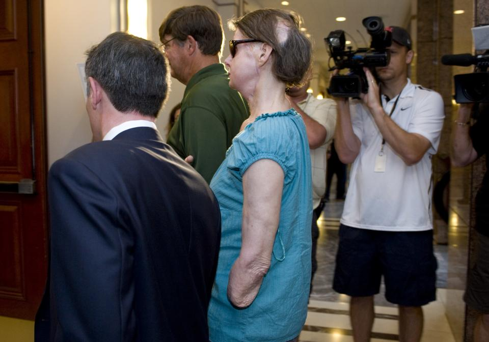Charla Nash arrives for a hearing at the Legislative Office Building in Hartford, Conn., Friday, Aug. 10, 2012.  Nash who was mauled in a 2009 chimpanzee attack is attending a hearing to determine whether she may sue the state for $150 million in claimed damages. (AP Photo/Jessica Hill)