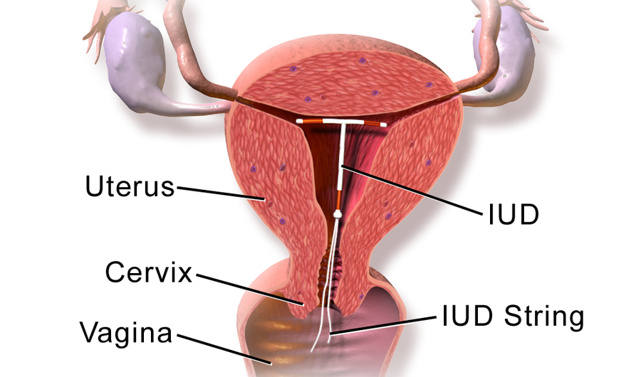 iud cervix diagram how do iuds work? what you need to know about the popular ...