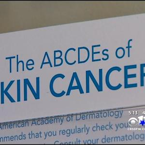 Early Diagnosis Is Key To Fighting Skin Cancer
