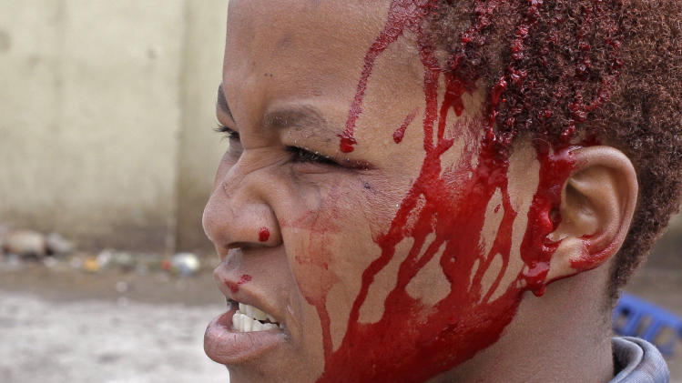 A woman farm worker that was injured during demonstration due to low wages in the town of Grabouw, South Africa, Wednesday, Jan 9, 2013. Striking farm workers on Wednesday set up barricades and threw stones at motorists and police in a South African province whose vineyards are vital to the wine industry, prompting riot officers to close roads and arrest at least 50 demonstrators, South African media reported. (AP Photo/Schalk van Zuydam)