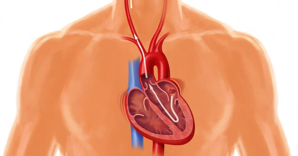 Learn The Dangers Of AFib And Its Stroke Risks