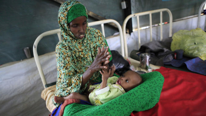 """Mariam Abucar Omar plays with her son Abdirahman Abdullahi, 7 months, at a Doctors Without Borders hospital where he is receiving treatment for severe malnutrition, in Dagahaley Camp outside Dadaab, Kenya, Monday, July 11, 2011. U.N. refugee chief Antonio Guterres said Sunday that drought-ridden Somalia is the """"worst humanitarian disaster"""" in the world, after meeting with refugees who endured unspeakable hardship to reach the world's largest refugee camp in Dadaab, Kenya. (AP Photo/Rebecca Blackwell)"""