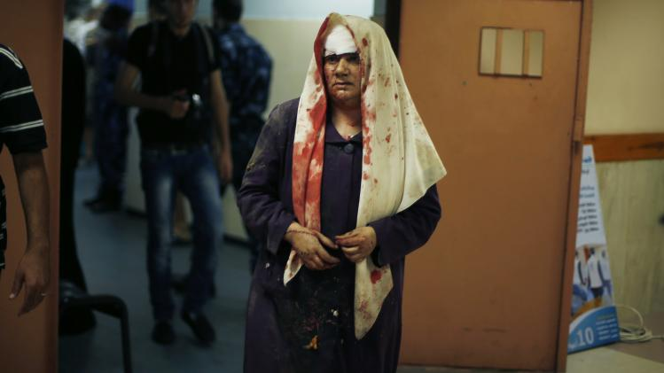 A Palestinian woman, who medics said was wounded during heavy Israeli shelling, stands at a hospital in Gaza City