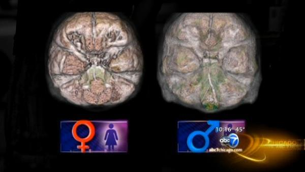 Neurology center focuses on women's brain