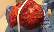 A 51 pound cancerous tumor is pictured after it was removed from a patient, in this handout photo from Riverview Medical Center, in Red Bank, New Jersey received by Reuters on July 3, 2012. REUTERS/Riverview Medical Center/Handout