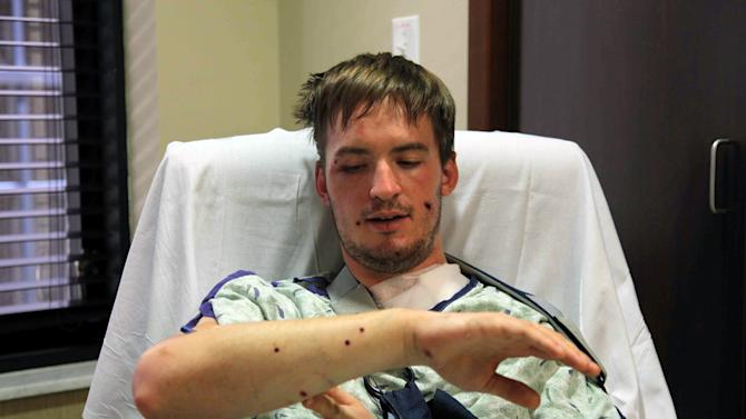 "Stephen Barton, of Southbury, Conn., talks about his injuries Sunday, July 22, 2012, at the Medical Center of Aurora, in Aurora, Colo. Barton was wounded Friday when a gunman opened fire at a midnight showing of the new Batman movie, ""The Dark Knight Rises,"" in Aurora, where 12 people were killed and dozens more injured. (AP Photo/Robert Ray)"