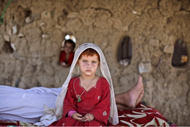 In this Tuesday, Aug. 7, 2012, Afghan refugee girl, laiba Hazrat, 5, sits on a bed next to her sleeping granfather, outside their home in a slum on the outskirts of Islamabad, Pakistan. Hundreds of th