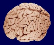 A photo of the human brain.
