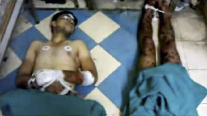 This image made from amateur video released by Shaam News Network and accessed Saturday, June 9, 2012, purports to show dead bodies after shelling in Daraa, Syria. Syrian troops shelled the southern city of Daraa early on Saturday, killing more than a dozen people, activists said.(AP Photo/Shaam News Network via AP video) THE ASSOCIATED PRESS CANNOT INDEPENDENTLY VERIFY THE CONTENT, DATE, LOCATION OR AUTHENTICITY OF THIS MATERIAL