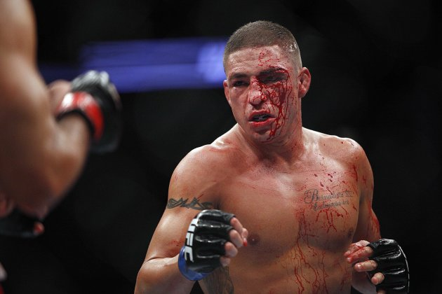 A cut above Diego Sanchez's left eye had him bloody early on Saturday. (USA Today)