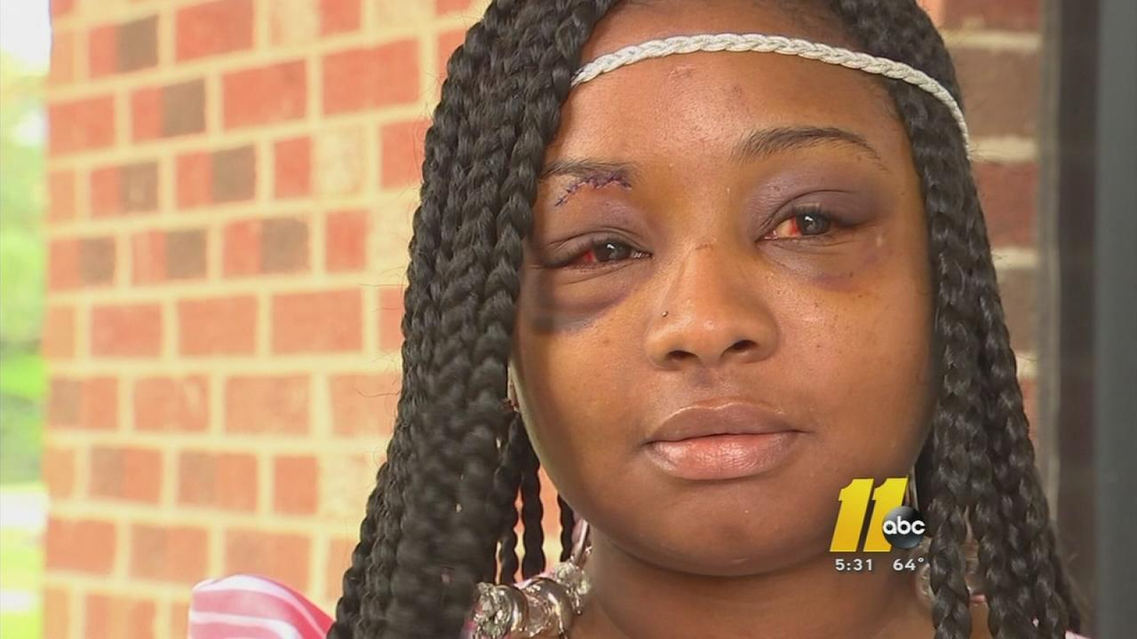 Woman survives car ride beating from Chapel Hill to Durham