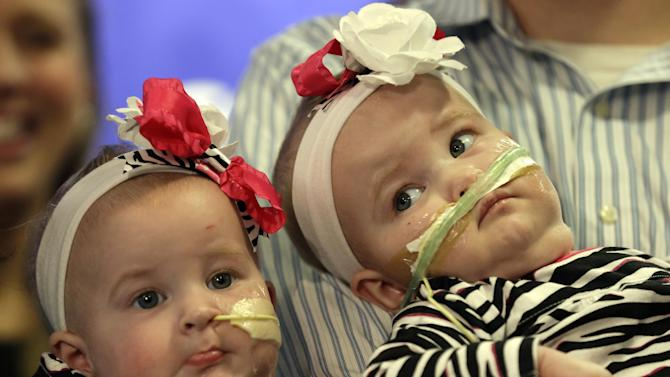 Shellie and Greg Tucker, parents of Allison, left and Amelia, present their nine-month-old girls who were formerly conjoined twins at Children's Hospital of Philadelphia (CHOP) Thursday, Dec. 20, 2012, in Philadelphia. Surgeons at CHOP separated the Tucker girls during a seven-hour operation in November. The infants from Adams, N.Y., had been joined at the lower chest and abdomen. They shared their chest wall, diaphragm, pericardium and liver. (AP Photo/Matt Rourke)