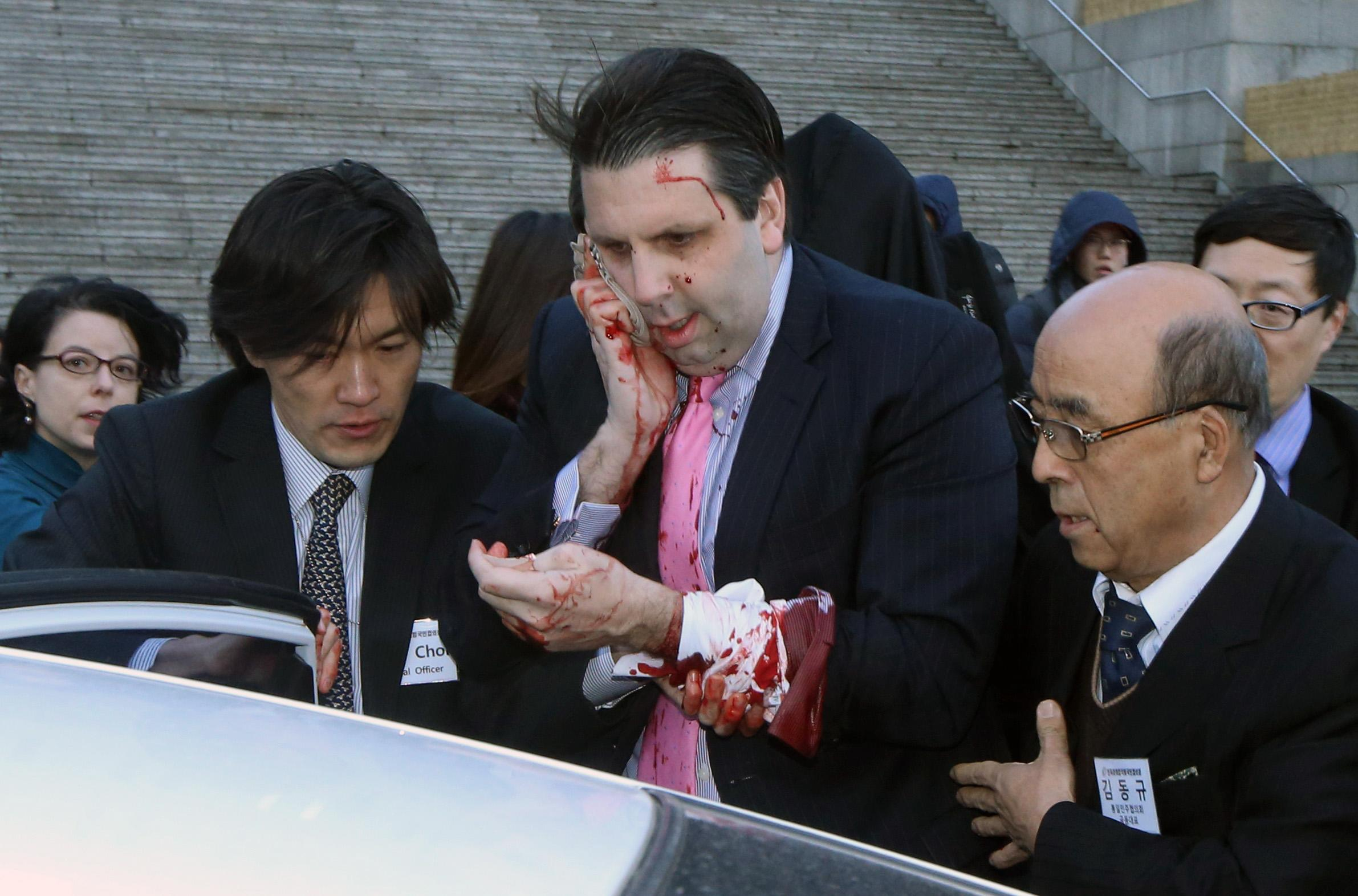SKorean media say US ambassador attacked and hurt