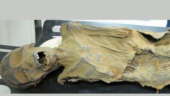 Ancient Mummies Had Clogged Arteries, Too
