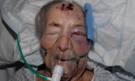Murder Inquiry After Beaten Grandmother Dies