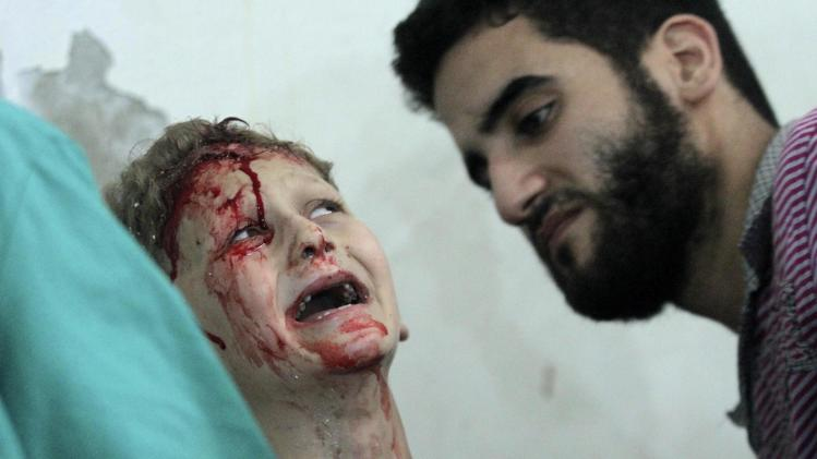 A boy, covered with blood, reacts after sustaining injuries following what activists said was an air strike at a site by forces loyal to Syria's President Bashar al-Assad in Duma in eastern al-Ghouta