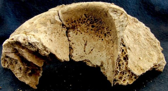 T36-frontal-lobe-130227 - Most Ancient Romans Ate Like Animals - Science and Research