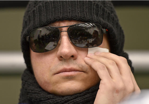 Artistic director of the Bolshoi's ballet  Sergei Filin drying  his eye during a press conference at the university hospital in Aachen, Germany, Friday, March 15, 2013. Filin gets medical treatment in