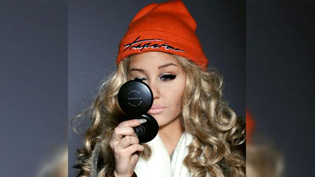 Amanda Bynes 'Improving Daily,' Says Rep