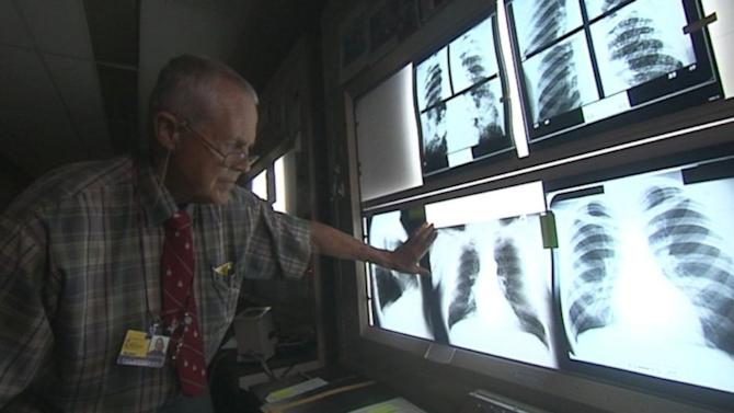 Labor Officials Promise to Fix Program for Coal Miners With Black Lung