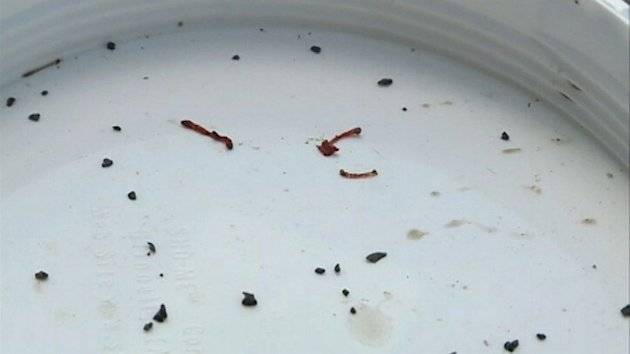Blood Worms Invade Okla. Town's Water Supply (ABC News)