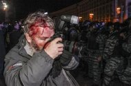 Wounded Reuters photographer Gleb Garanich, who was injured by riot police, takes pictures as riot police block protesters during a scuffle at a demonstration in support of EU integration at Independence Square in Kiev November 30, 2013. REUTERS/Stringer