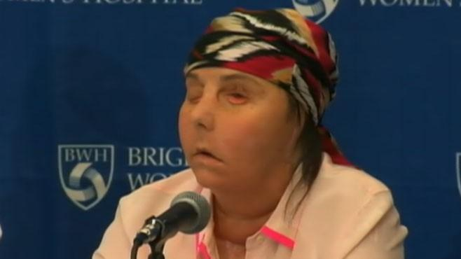 Vermont Mom Reveals Face After Transplant