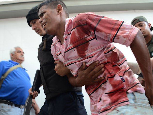An injured prison inmate is escorted by a policeman into the hospital in Barquisimeto, Venezuela,  Friday, Jan. 25, 2013. A bloody riot erupted at the Uribana prison in the central Venezuelan city of
