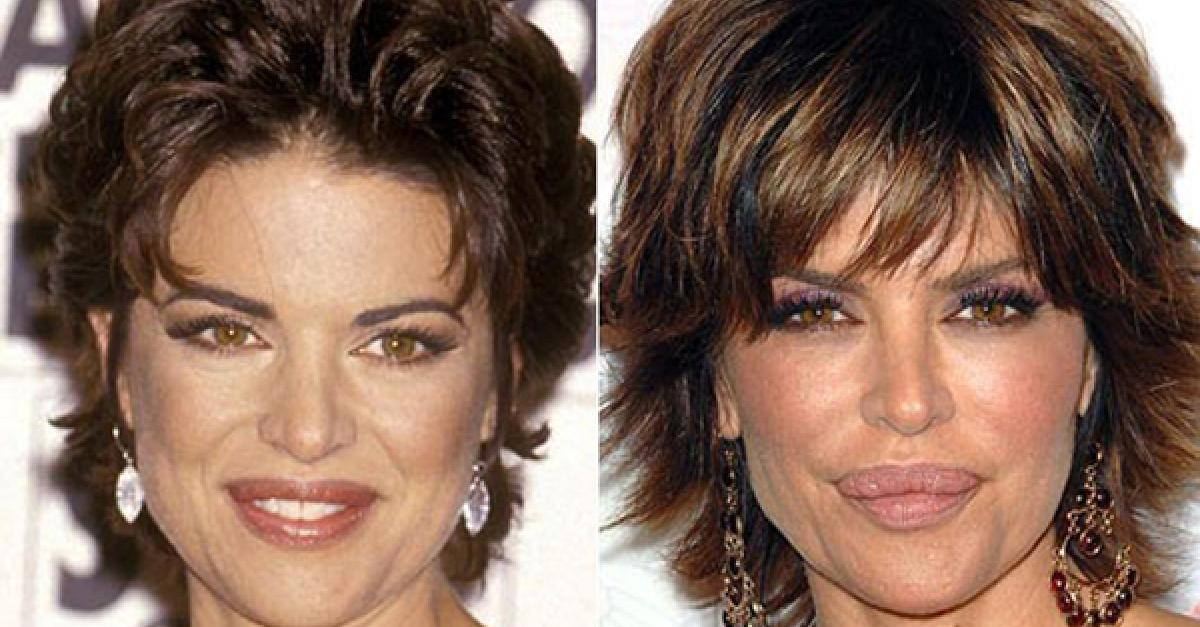 10 Celebrity Plastic Surgery Disasters