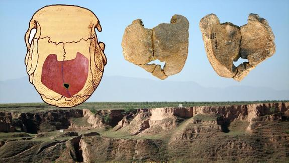 Inbreeding Common in Early Humans, Deformed Skull Suggests