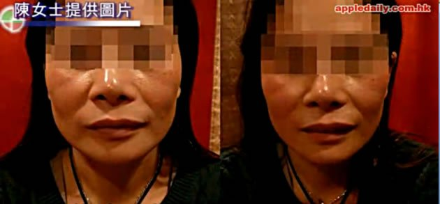 A bizarre cosmetic procedure leads to a woman in Hong Kong having an asymmetrical face. (Screengrab from Apple Daily video)