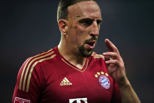Franck Ribery is out of Bayern Munich&amp;#39;s first game with a fever