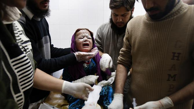 A Pakistani baby girl injured in a rocked attack by militants, is treated at a local hospital in Peshawar, Pakistan on Saturday, Dec. 15, 2012. Militants fired three rockets at an airport in the northwestern Pakistani city of Peshawar on Saturday night, killing several people and wounding dozens, officials said. (AP Photo/Mohammad Sajjad)