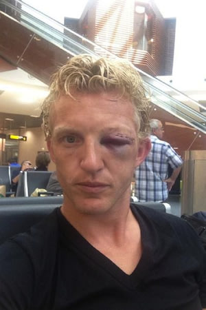 Thats scary! Dirk Kuyts face is an almighty mess after a head collision with De Guzman