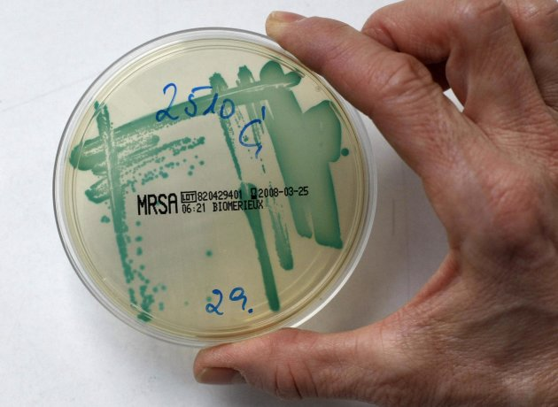 File picture shows a MRSA bacteria strain in a petri dish containing a special jelly for bacterial culture in a microbiological lab in Berlin