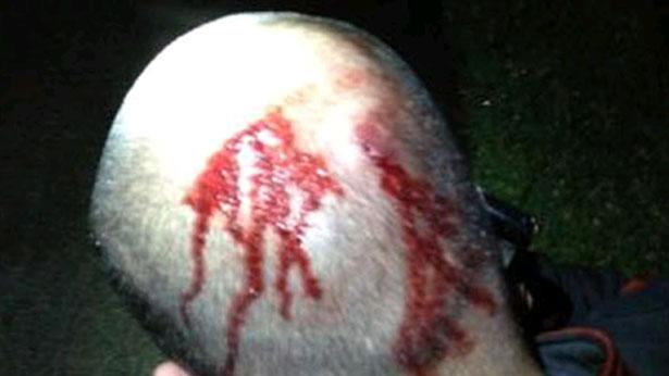 Photo Shows Blood on George Zimmerman's Head After Martin Shooting