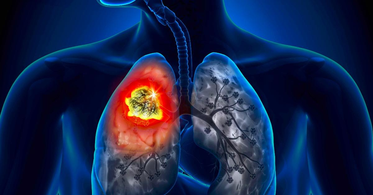 Watch: Emergency Warning Signs for COPD