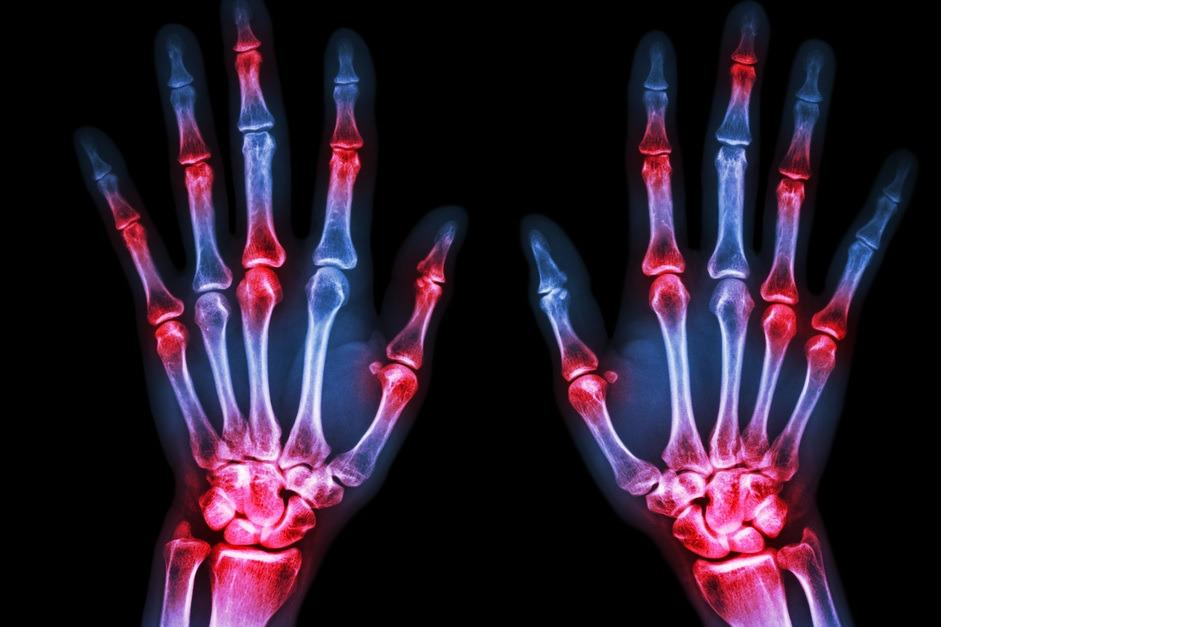 Don't Rely On A Doctor To Handle Arthritis Pain