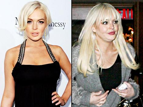 What Really Happened to Lindsay Lohan's Face?