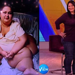 Mayra Rosales, The Woman Who Lost 800 Pounds